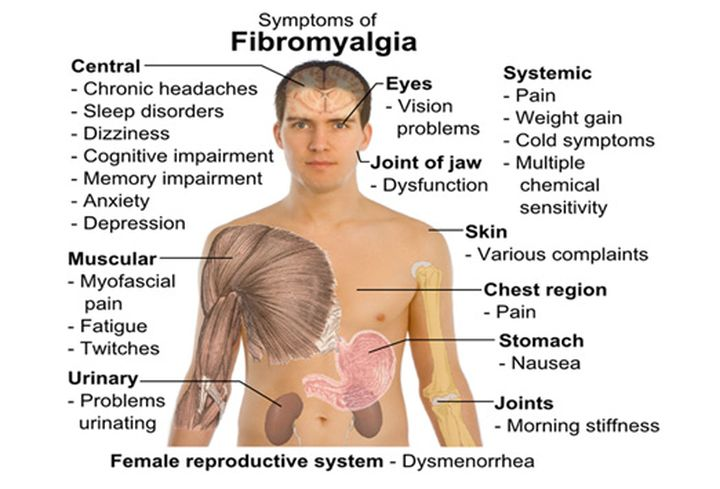 Tearing pain all over body - Fibromyalgia