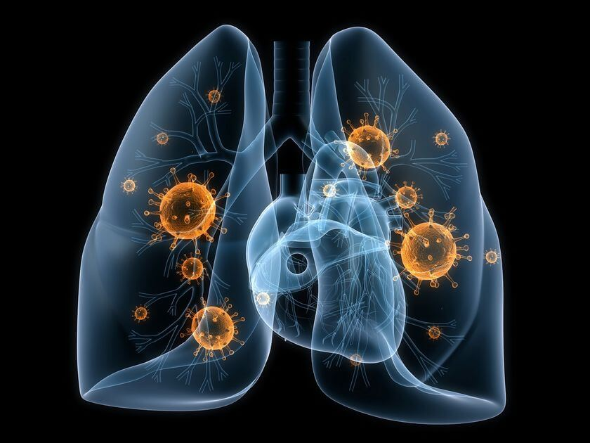 Bacterial Lung Infection Symptoms: Fungal, Bacterial, Viral