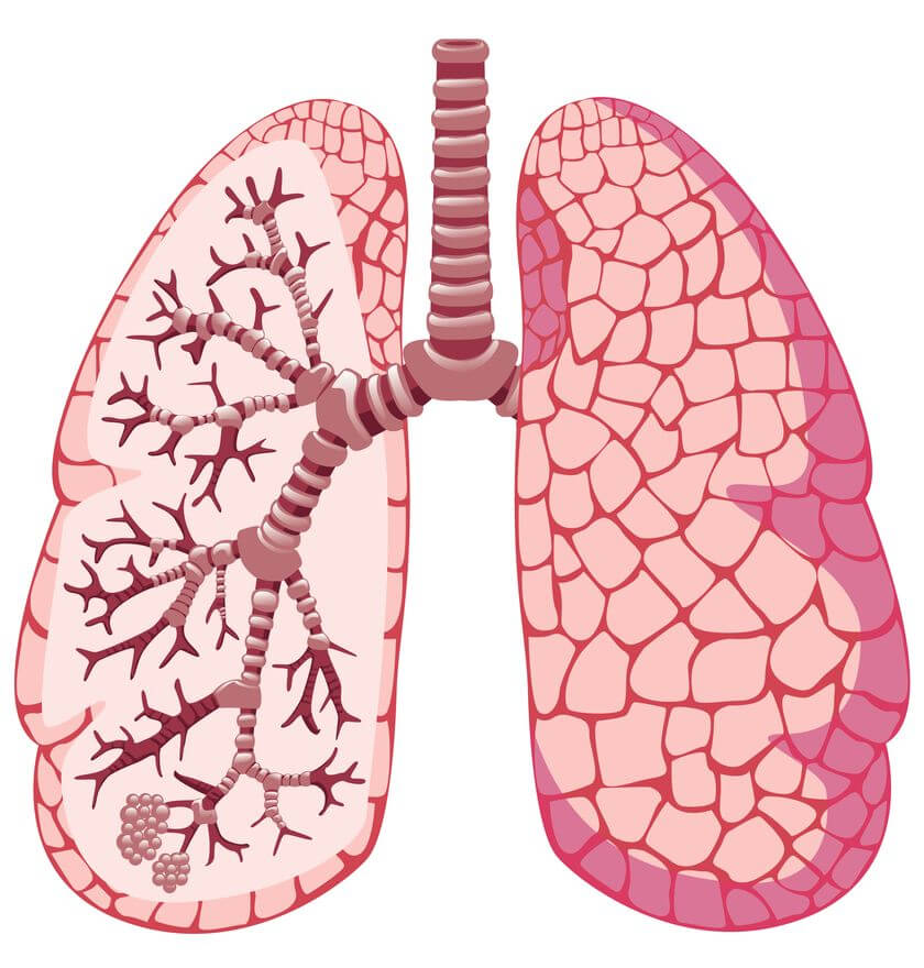 Pain in The Lungs: The Causes of Pain in The Lung