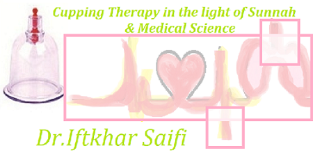 Cupping Therapy in the light of Sunnah & Medical Science
